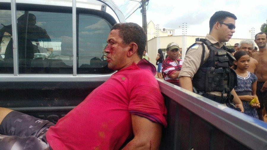 Ladrão se deu mal, ficou com o rosto ensanguentado (Foto: Programa Rota)