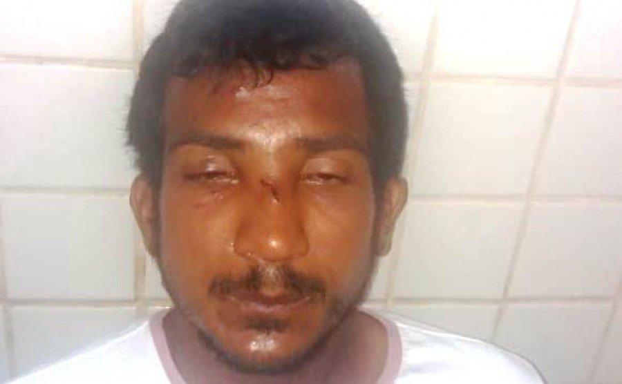 Aprendiz de Bandido invade casa em Parauapebas-PA, dorme no sofá e vai parar na cadeia (Foto: Pebinha de Açúcar)